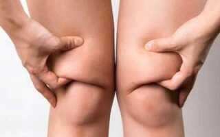 Некрасивые толстые коленки: избавление от морщин и жирных валиков на коленях с помощью простых упражнений дома