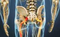 Упражнения, которые можно делать при защемлении седалищного нерва и каким методом можно избавиться от ишиаса, а так же противопоказания и причины появления данной проблемы у людей