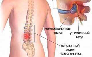 Упражнения для спины и поясницы при межпозвоночной грыже дома