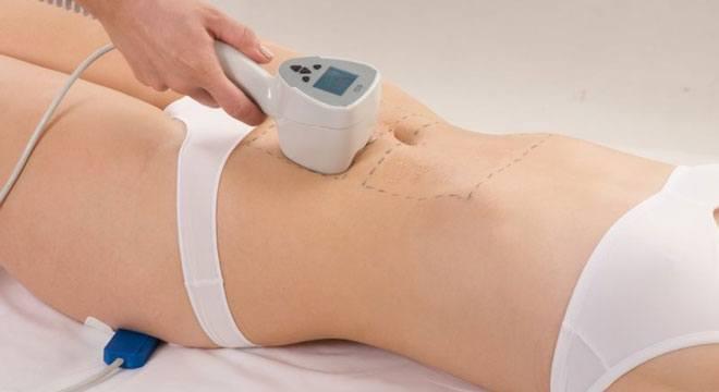 С помощью специального аппарата можно бесследно и быстро убрать растяжки после родов, без болезненных ощущений и периода реабилитации.