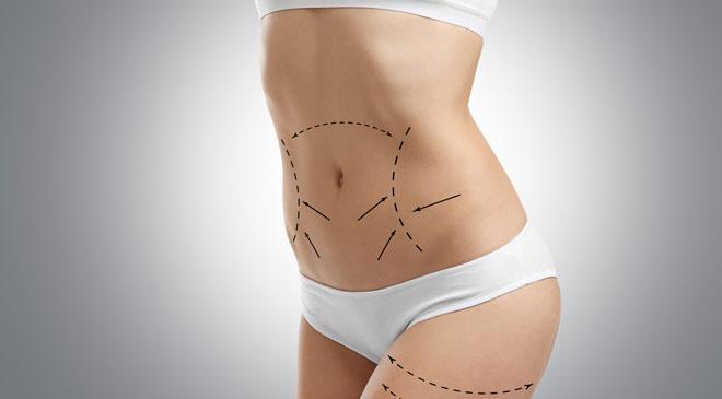 По сути растяжки, или стрии, это разрывы на коже, покрытые соединительной тканью.