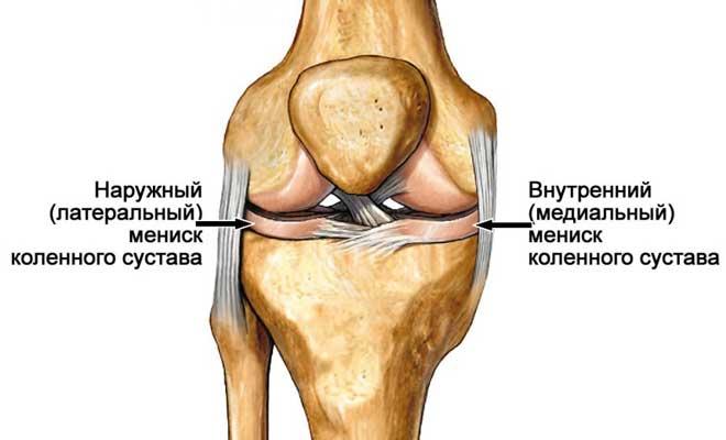 В каждом колене мениска два: латеральный (наружный, то есть расположен ближе к краю) и медиальный (внутренний, расположен ближе к середине)