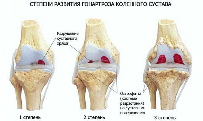 Суставы состоят из соединение двух или более костей и обеспечивают подвижность человеческого опорно-двигательного аппарата.