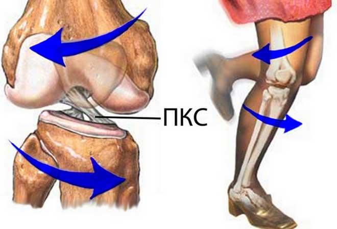 Передняя крестообразная связка - один из главных стабилизаторов коленного сустава, удерживающий голень от смещения.