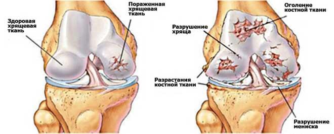 Заболевание, при котором происходит разрушение внутрисуставной хрящевой ткани, называется гонартрозом.