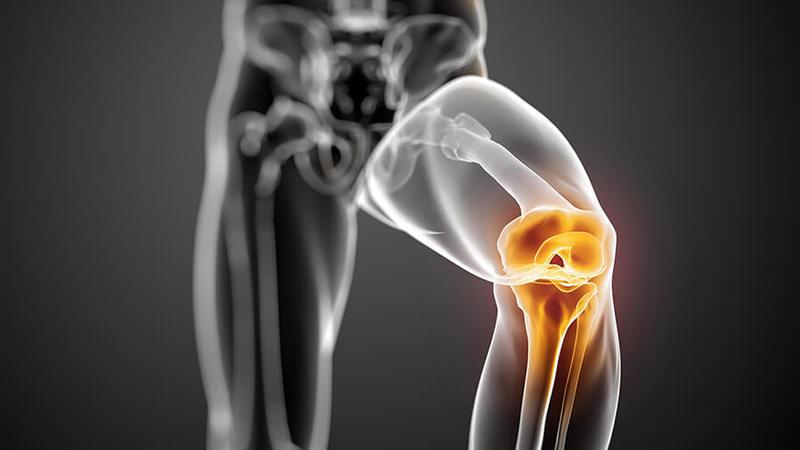 Хронические травмы мениска могут возникать при несильном, но частом воздействии