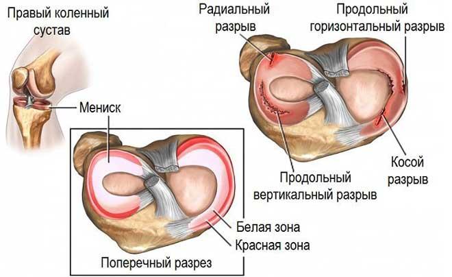 Между менисками находятся крестовидные связки, которые при травмах тоже могут повреждаться.