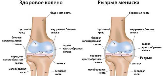 Можно повредить мениск при резком разгибании колена из согнутого положения, при отведении ноги в сторону.