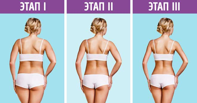 При ожирении может развиться метаболический синдром, при котором основная масса жира откладывается на внутренних органах.