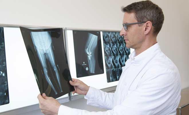 После эндопротезирования коленного сустава упражнения должны выполняться в среднем ритме и темпе.