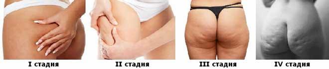 Целлюлит, увы, классическая женская проблема, точнее, способ организации жировой и соединительной ткани.