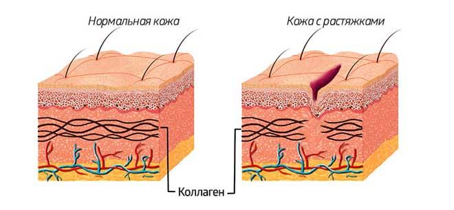 Растяжки выглядят как небольшие шрамы. Обычно они светлее кожи, не загорают, имеют специфический, выраженный рельеф.