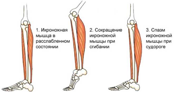 Ночные судороги икроножных мышц могут проявляться по-разному.
