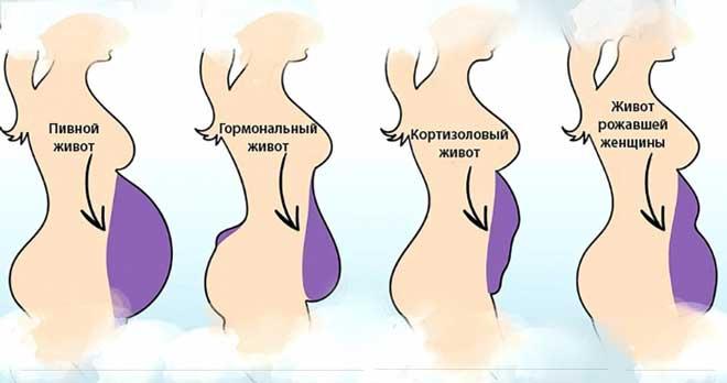 Высокий уровень кортизола в течение длительного времени имеет много негативных последствий, среди которых — набор лишнего веса и появление «кортизолового живота».